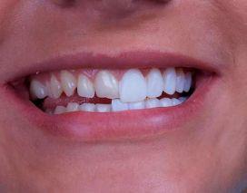 Facetas dentais: o que são e para que servem?