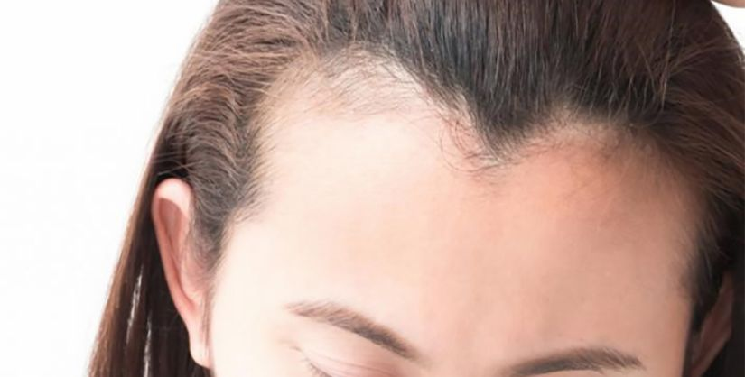 Principais procedimentos para tratar a calvície feminina