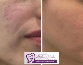Microagulhamento aumenta 400 vezes a quantidade de colágeno na sua pele !